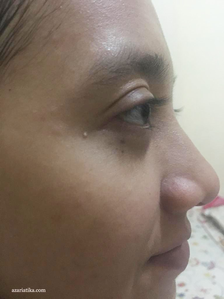 azariatika setelah pemakaian himalaya herbals neem mask 768x1024 - Review Masker Himalaya Purifying Neem Mask, Penolong Kulit Bruntusan dan Jerawatan